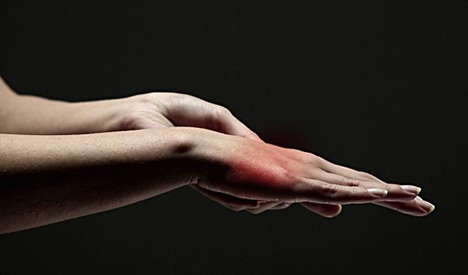 10+1 egészségügyi probléma, melyről elsőként a kezed árulkodik
