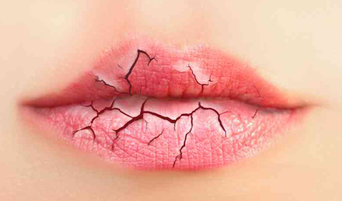 9 tünet, mely bizonyítja, hogy a magas vércukorszint hatással van a szervezetedre