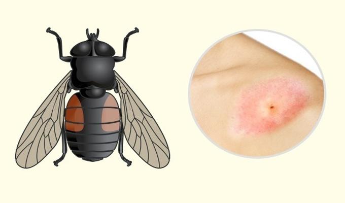 10 rovarcsípés, melyet mindenképpen fel kellene ismerned