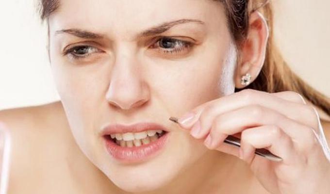 9 természetes módszer, mellyel megszabadulhatsz az arcodon lévő nem kívánatos szőrszálaktól