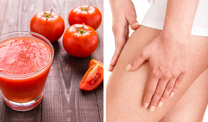 9 természetes gyógymód a visszér ellen - Szabadulj meg tőle!
